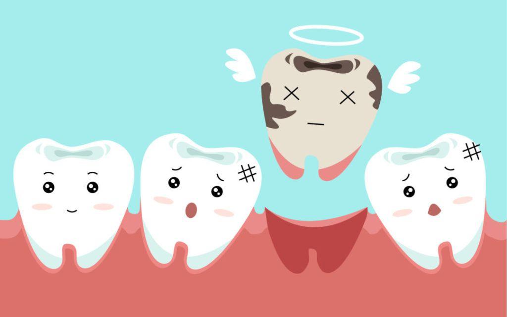 best-dental-implant-in-mumbai